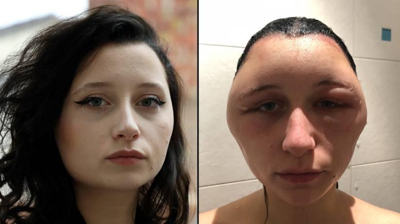 Kopf Angeschwollen Heftige Allergie Wegen Haarfärbemittel