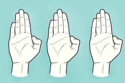 Hand und taub ringfinger finger linke kleiner Kribbeln im