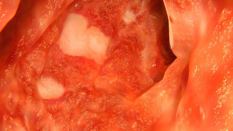Rezepte Colitis Ulcerosa