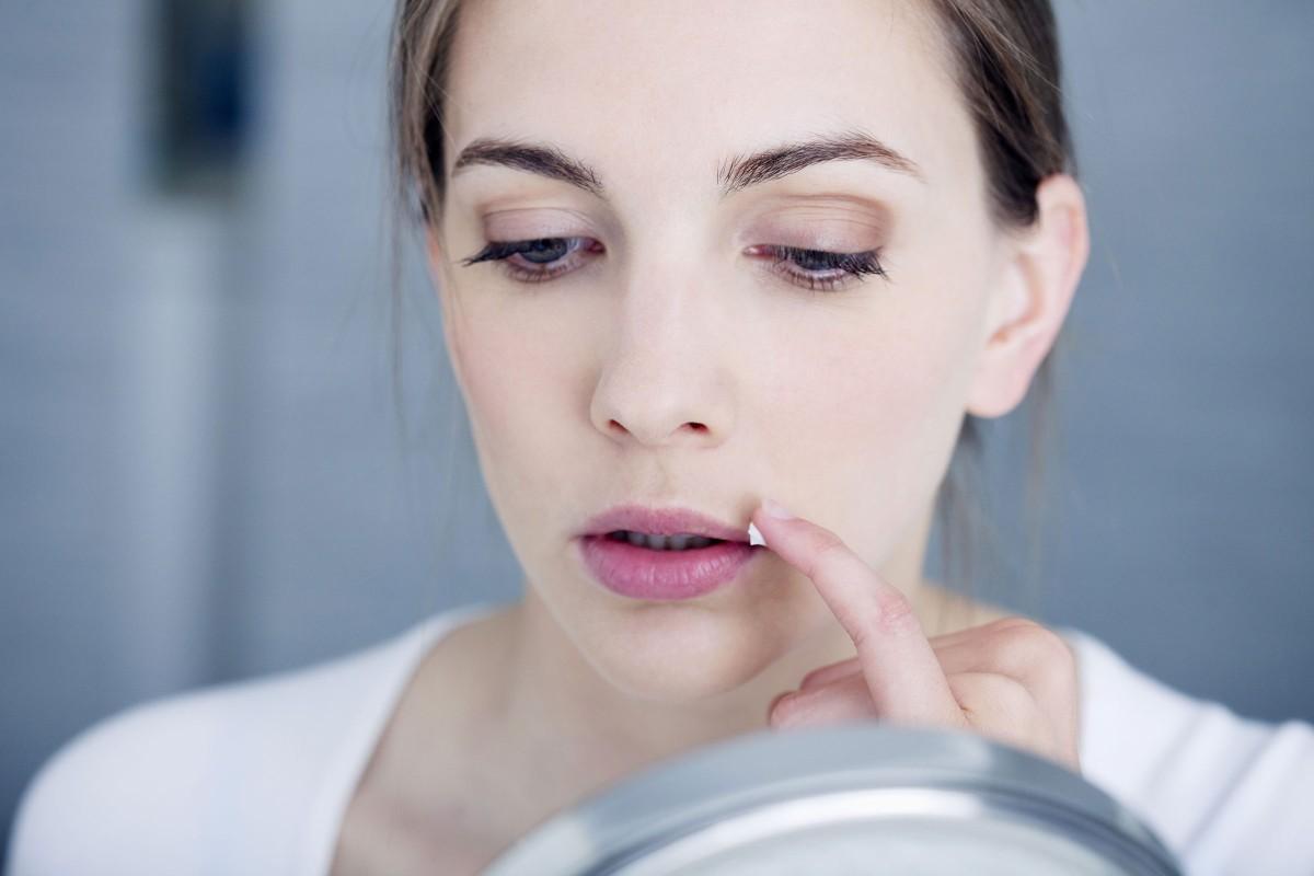 Was Hilft Gegen Lippenherpes Hausmittel