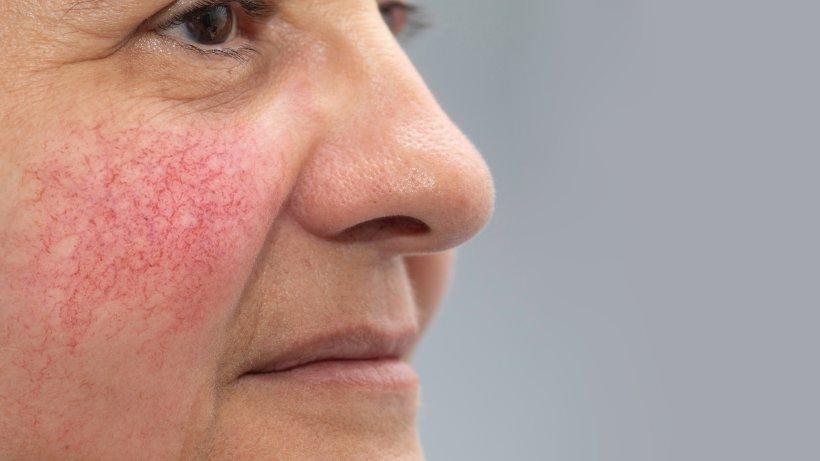 Hautkrankheit Rosacea: So behandeln Sie rote Flecken im