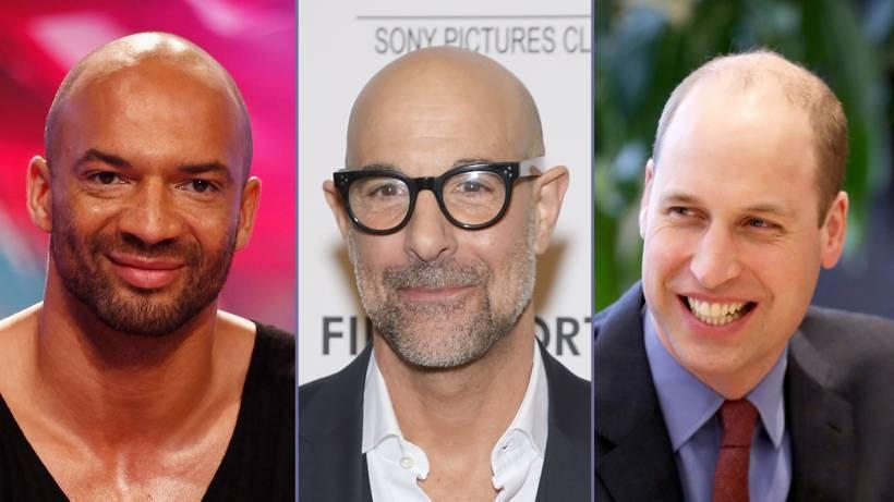 Prominente Männer Mit Glatze Bildderfraude