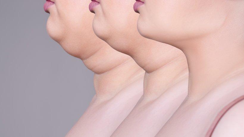 Gesichts-BH gegen Doppelkinn: Wie sinnvoll ist das?
