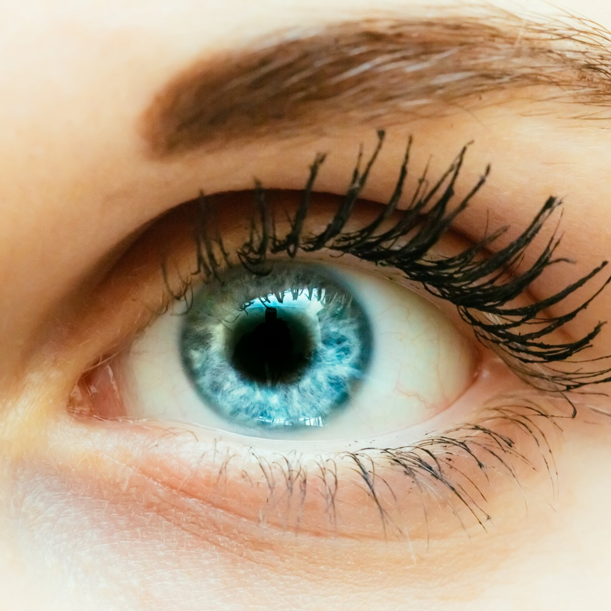 Um iris ring dunkler die Limbaler Ring,