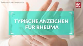 Anzeichen für rheuma
